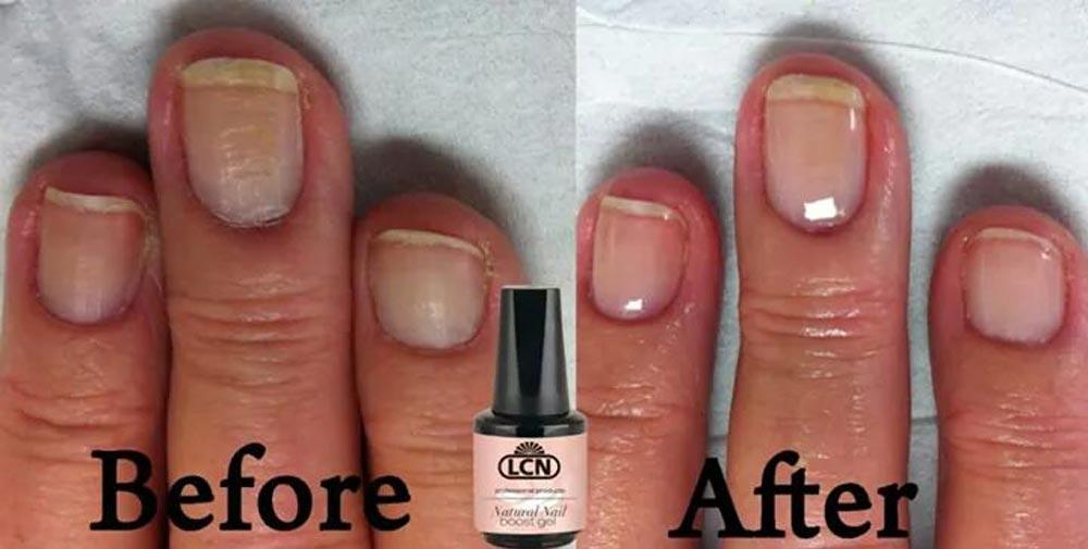 Natural Nail Boost at Onyx Beauty and Nails