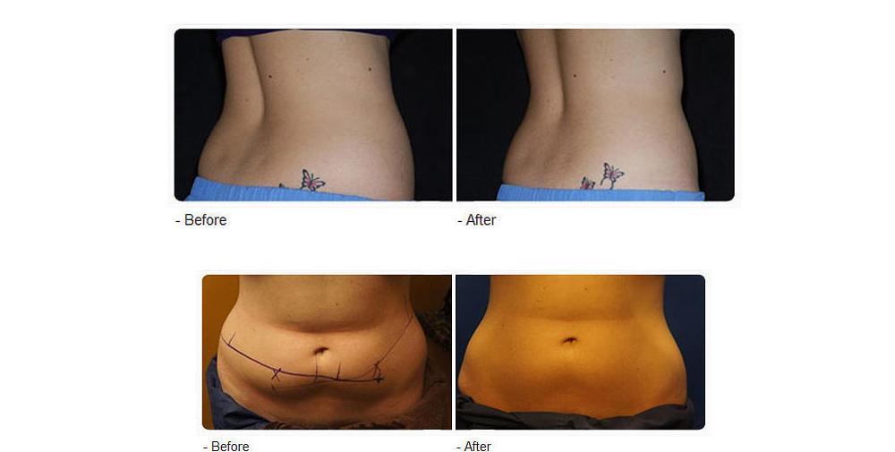Coolplas fat freezing trial treatment diet plan for A trial beauty treatment salon